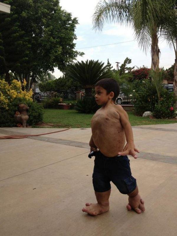 Η συγκινητικη ιστορία ιστορία του μικρού Τζιοβάνι