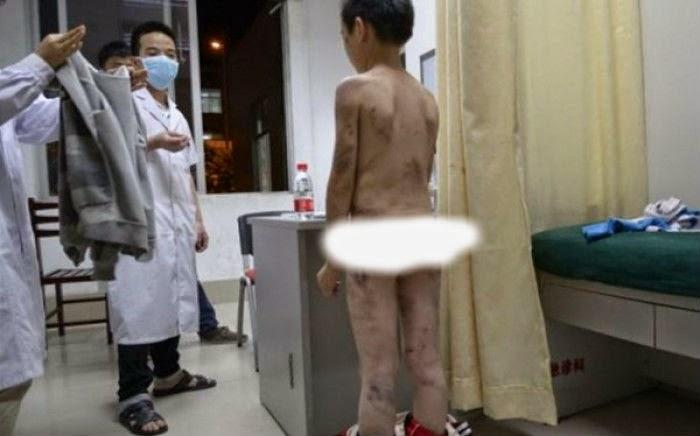Φωτό που σοκάρουν: Οι μώλωπες ενός 10χρονου από τη μητριά του