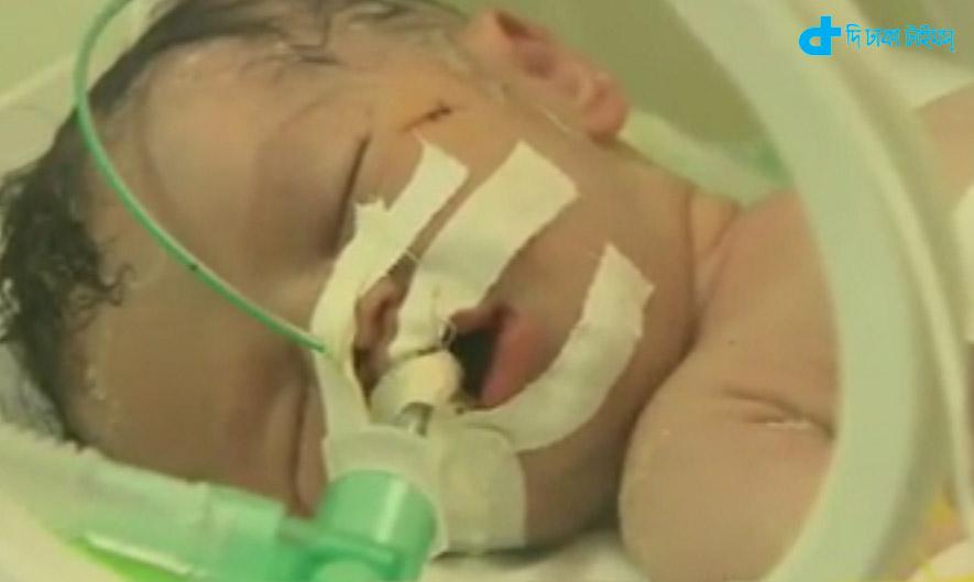Γάζα: Μωράκι γεννήθηκε από την κοιλιά της νεκρής μητέρας του