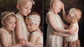 Τα τρία κοριτσάκια που νίκησαν τον καρκίνο!