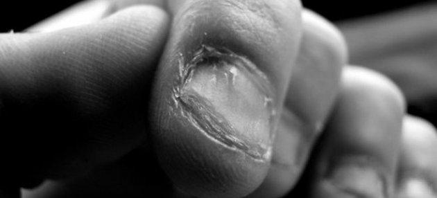 Τα ΜΥΣΤΙΚΑ που κρύβουν τα νύχια μας για την υγεία μας!