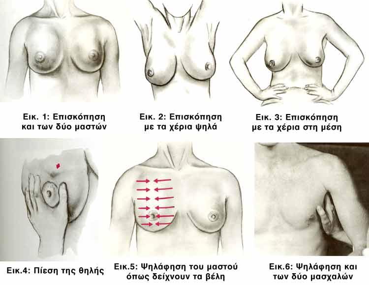 Ένα άρθρο που αφορά όλες τις γυναίκες! Πώς γίνεται η αυτοεξέταση μαστού