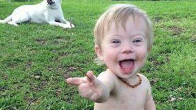 Η απάντηση μιας μητέρας παιδιού με σύνδρομο down σε κάποιον που αποκάλεσε το παιδί της άσχημο