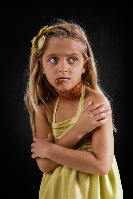 Τι θα συνέβαινε αν η λεκτική βία άφηνε τα ίδια σημάδια με την σωματική; Δειτε τις σοκαριστικες φωτογραφιες