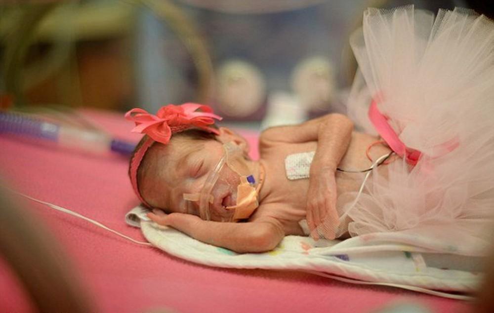 Συγκλονιστική ιστορία: Μητέρα  έχασε το μωράκι της και για να τιμήσει τη μνήμη του φωτογραφίζει πρόωρα μωρά!