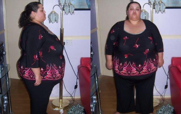 Kαι να το δείτε ΔΕΝ θα το πιστεύετε: Η απίστευτη μεταμόρφωση αυτής της κοπέλας… Δείτε πόσα κιλά έχασε! [photo]