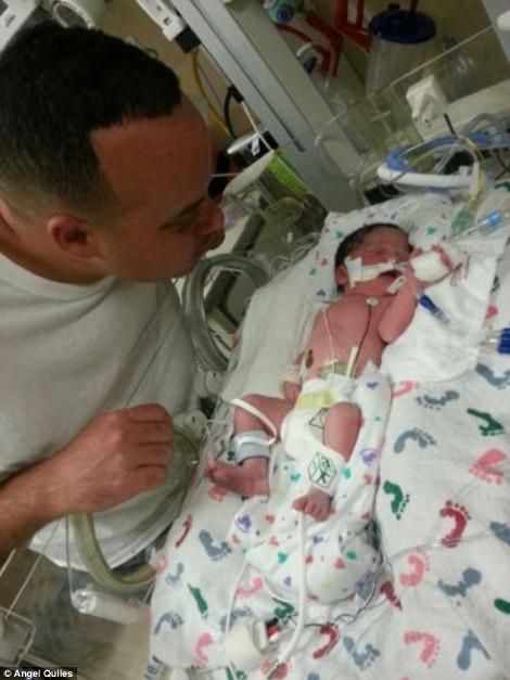 Το θαύμα της φύσης: Εγκυος χτυπήθηκε από νταλίκα, έπεσε σε κώμα και ξύπνησε για να γεννήσει [εικόνες]