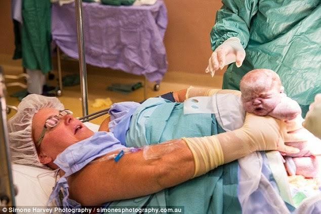 Δείτε τη μαμά που έβγαλε με τα ίδια της τα χέρια από τη κοιλιά τα δίδυμα μωρά της κατά τη διάρκεια της καισαρικής τομής! (βίντεο)