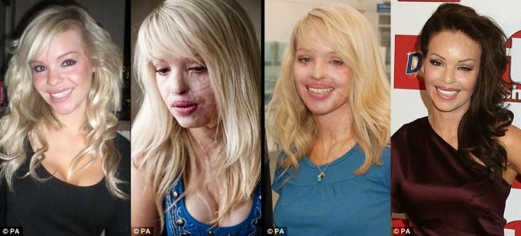 Η 30χρονη καλλονή που δεν το έβαλε κάτω: Στα 24 τής κατέστρεψαν το πρόσωπο με οξύ -Σήμερα είναι παρουσιάστρια εκπομπής [εικόνες]