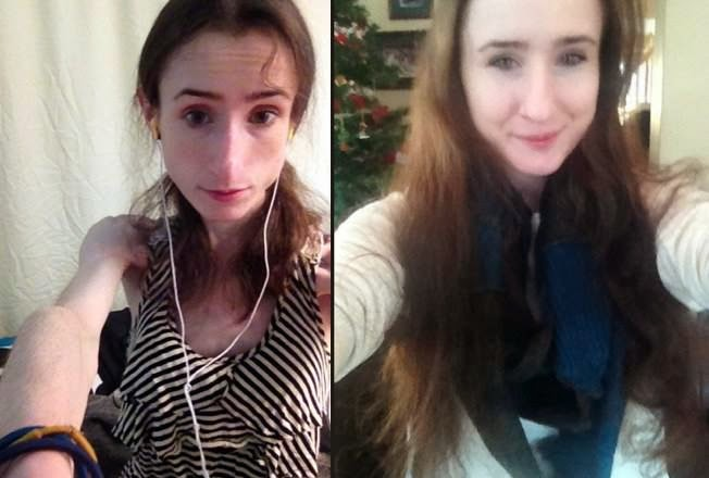 Συγχαρητήρια στη κοπέλα!Νίκησε την ανορεξία και οι φωτογραφίες της σαρώνουν το διαδίκτυο