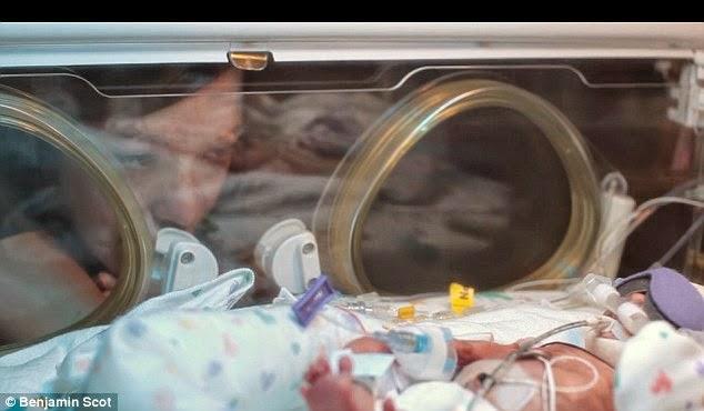 Η 30χρονη Αμάντα, κάπνιζε κατά τη διάρκεια της εγκυμοσύνης της. .Δειτε τα αποτελεσματα! VIDEO