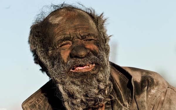 Ο άνθρωπος που δεν έχει κάνει μπάνιο 60 χρόνια!