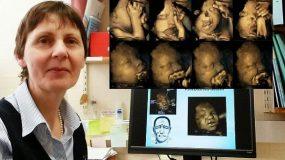 Εικόνες σοκ απο εμβρύα που υποφερουν στην μητρα την ώρα που η μάμά τους καπνίζει.Εικόνες και βίντεο