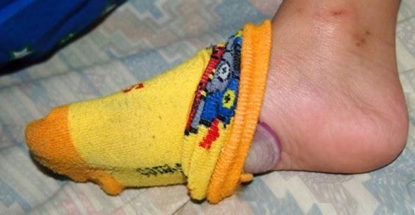 Έβαλε Κρεμμύδια μέσα στις κάλτσες το βράδυ ... Ο λόγος;Δε θα το πιστεύετε!