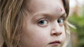 Παιδικά ατυχήματα. Το παιδί χτύπησε στο κεφάλι!Τι πρεπει να κανω;