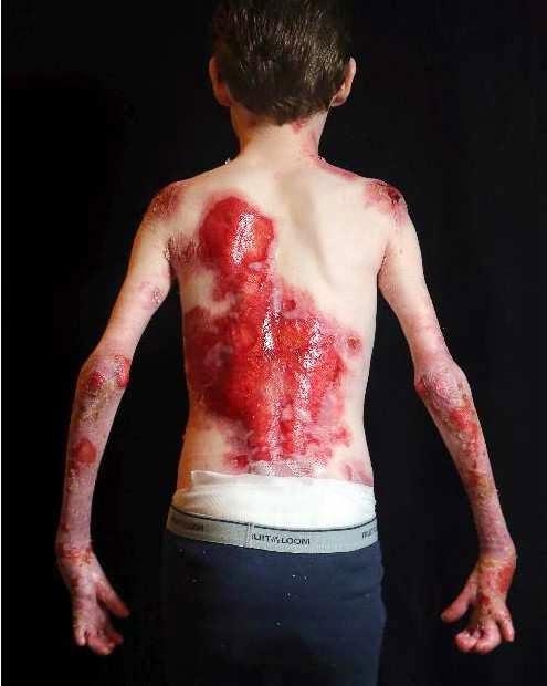 Προσοχη σκληρες εικονες :Jonathan Pitre το παιδι πεταλουδα.Το video που θα σας συγκινησει