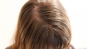 4 φυσικοί τρόποι για να γλυτώσεις από την λιπαρότητα στα μαλλιά σου!