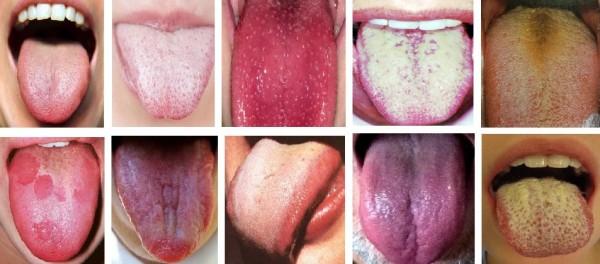 Ποια προβλήματα υγείας μαρτυρά η γλώσσα σας