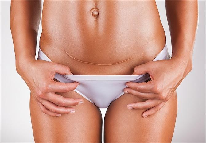 Μπορώ να κάνω κοιλιοπλαστική ταυτόχρονα με την καισαρική;