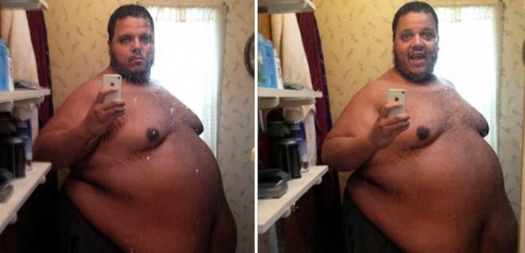 Η συγκινητική ιστορία ενός ανθρώπου που (κάποτε) ζύγιζε 317 κιλά