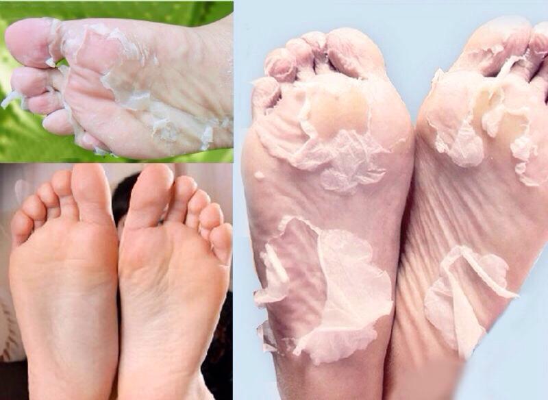 Κόλπο για να φύγει το νeκρo δέρμα από τις pατούsες χωρίς τρίψιμο!Δε θα το πιστεύετε!