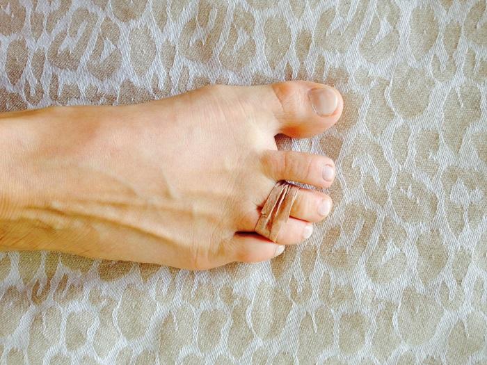 Λαστιχάκι στο δάχτυλό του ποδιού:To πιο τρελό tip για όλες τις γυναίκες!