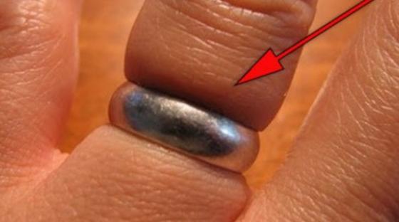 Βγάλτε το δαχτυλίδι που κόλλησε με ένα λαστιχάκι ; (video)