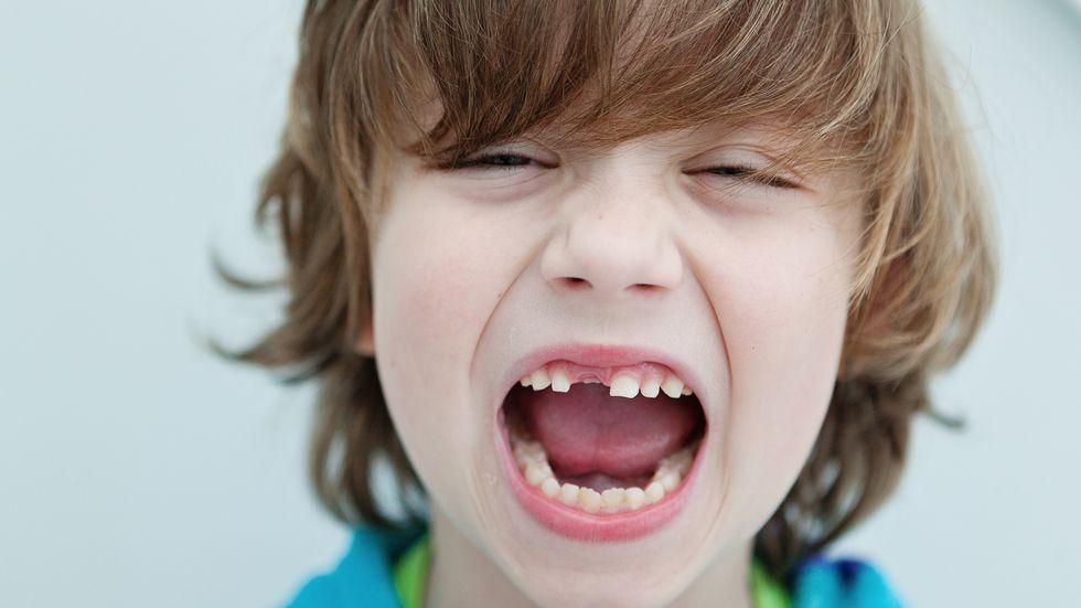 Πρώτες βοήθειες για τα δόντια των παιδιών