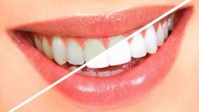 Αποκτήστε λαμπερό χαμόγελο με φυσικές τροφές
