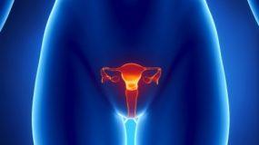 10 προειδοποιητικά σημάδια του «σιωπηλoύ δολοφόνου», καρκίνου των ωοθηκών