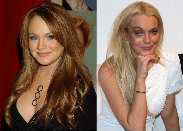 15 celebrities πριν και μετά τη χρήση ναρκωτικών