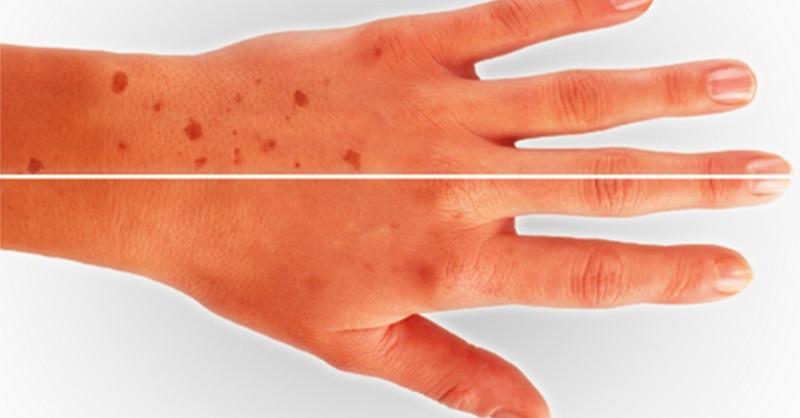 Κρέμα χεριών για πανάδες με 3 υλικά
