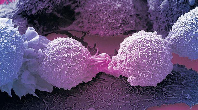 Έρευνα: Οι επιστήμονες βρήκαν την «αχίλλειο πτέρνα» όλων των καρκίνων