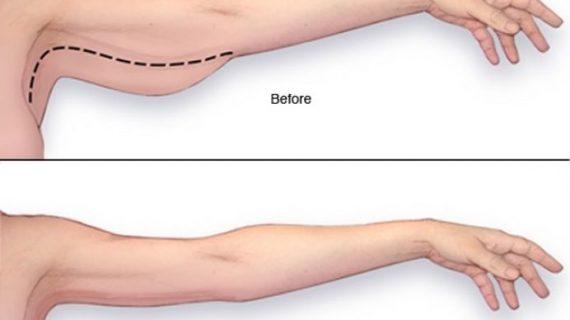 Πώς να χάσετε το λίπος από τα μπράτσα πανέυκολα