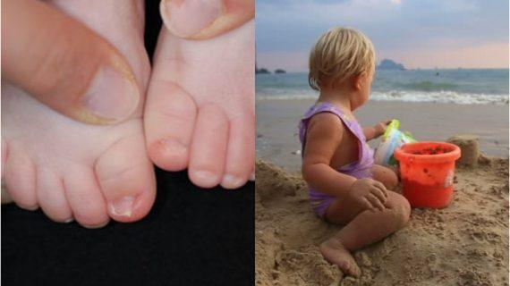 Τα 4 επικίνδυνα μικρόβια που κρύβονται στην άμμο και τις πισίνες