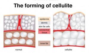 κυτταριτιδα