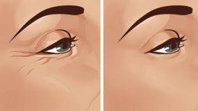8 τρόποι για να απαλλαγείτε από το πόδι της χήνας και άλλες αντιαισθητικές ρυτίδες των ματιών!