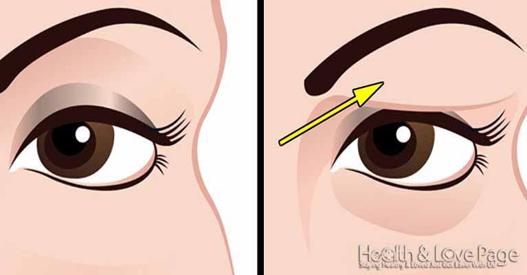 Πώς να διορθώσετε τα πεσμένα βλέφαρα φυσικά. Τα αποτελέσματα είναι εκπληκτικά!