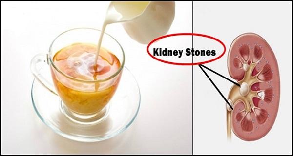 πετρες στα νεφρα