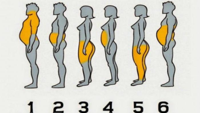 Σε ποια από τις 6 κατηγορίες ανήκετε ανάλογα με τα σημεία του σώματός σας που έχετε περιττό λίπος