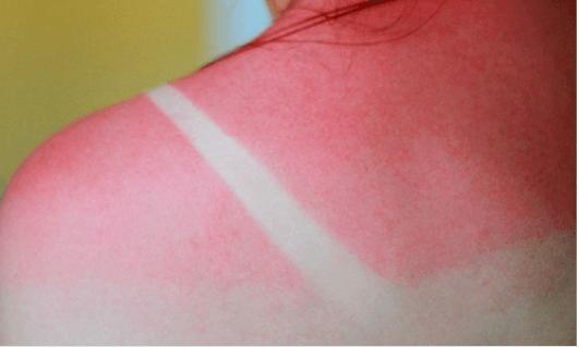 Οι καλύτερες θεραπείες για τα ηλιακά εγκαύματα