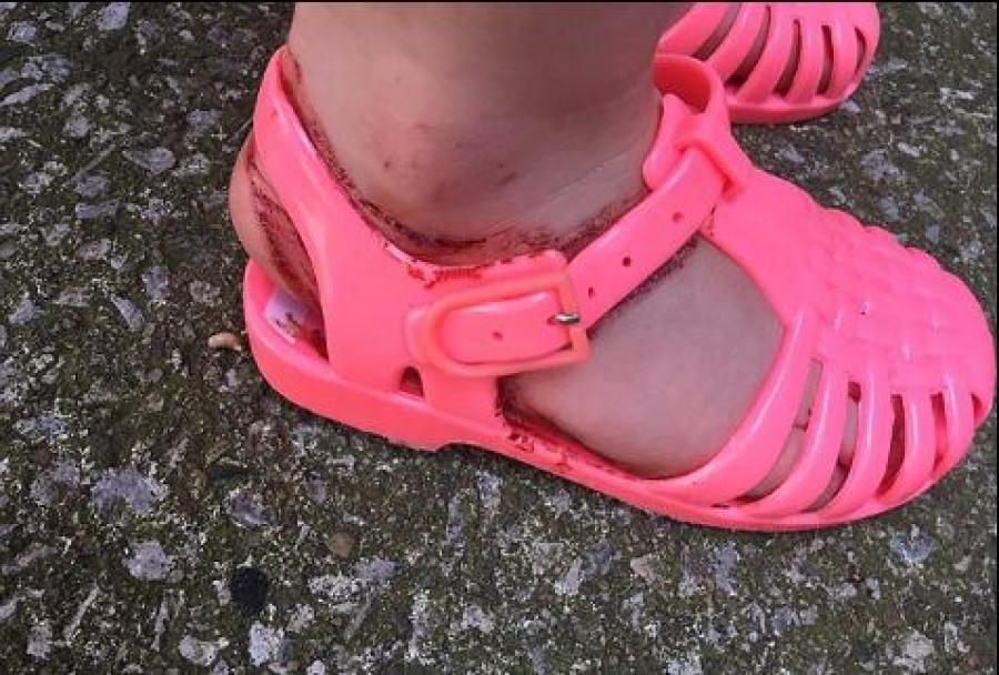 Δείτε τι έπαθαν τα πόδια 2χρονης από γνωστής μάρκας σανδάλια που φόρεσε - Σκληρές εικόνες