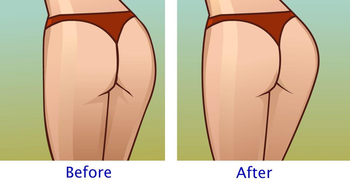 7  εύκολες ασκήσεις για στρογγυλούς γλουτούς