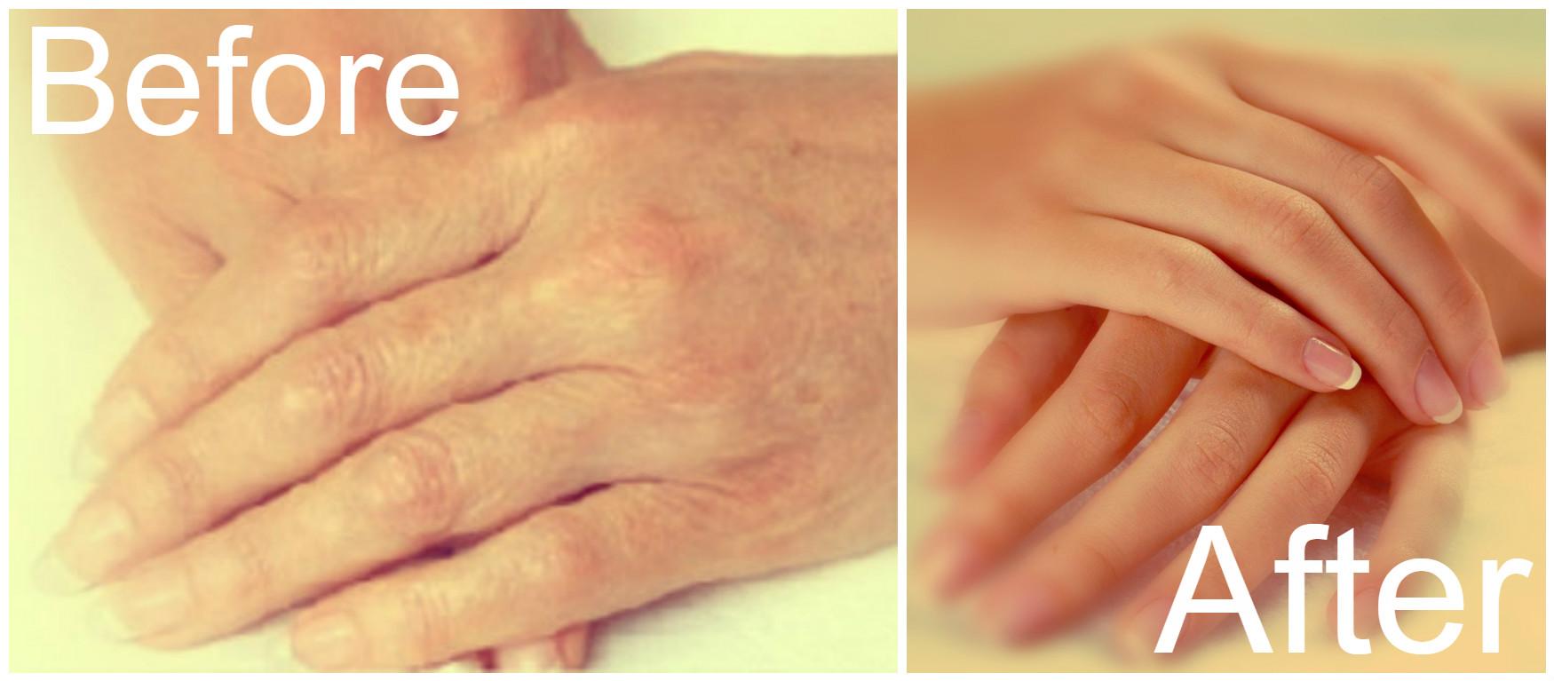 Απίστευτη συνταγή για να προστατέψετε τα χέρια σας από τα σημάδια της γήρανσης