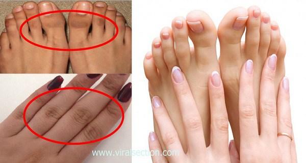 Σκούρες αρθρώσεις των δακτύλων ;Απαλλάξου με αυτές τις 4 φυσικές θεραπείες!