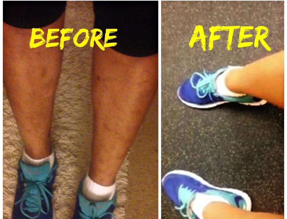 4 DIY τεχνάσματα για να απαλύνετε τις σκούρες κηλίδες του δέρματος