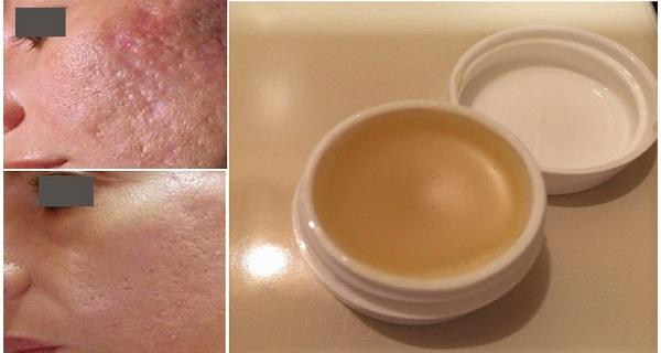 Εξαφανίστε τις ουλές από το δέρμα σας με αυτή την μοναδική σπιτική αλοιφή!