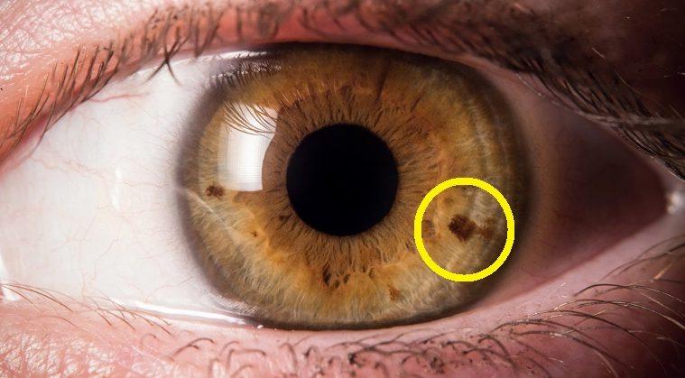 Κηλίδες στα μάτια;Δείτε τι μπορεί να σημαίνουν