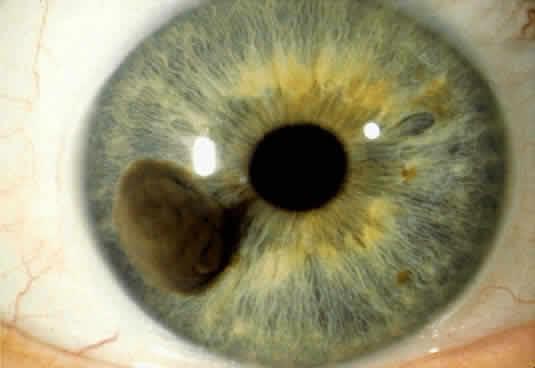 μελανωμα στο μάτι