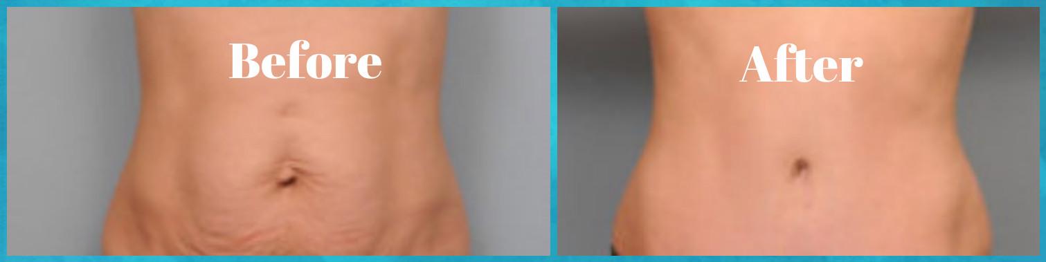 Πώς να εξαφανίσετε την χαλαρή κοιλιά εύκολα σε 16 εβδομάδες
